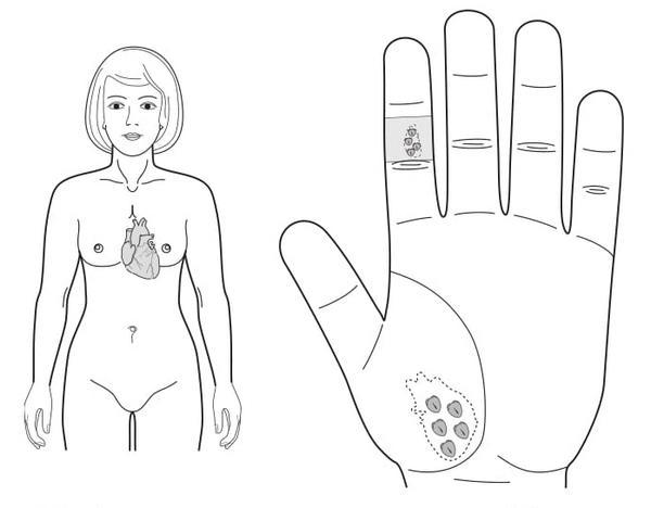 Рис. 115. Семянотерапия при ишемической болезни сердца
