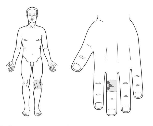 Рис. 89. Семянотерапия при боли в левом коленном суставе