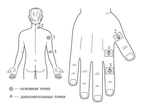 Рис. 106. Семянотерапия при боли в надплечье и плечевом суставе