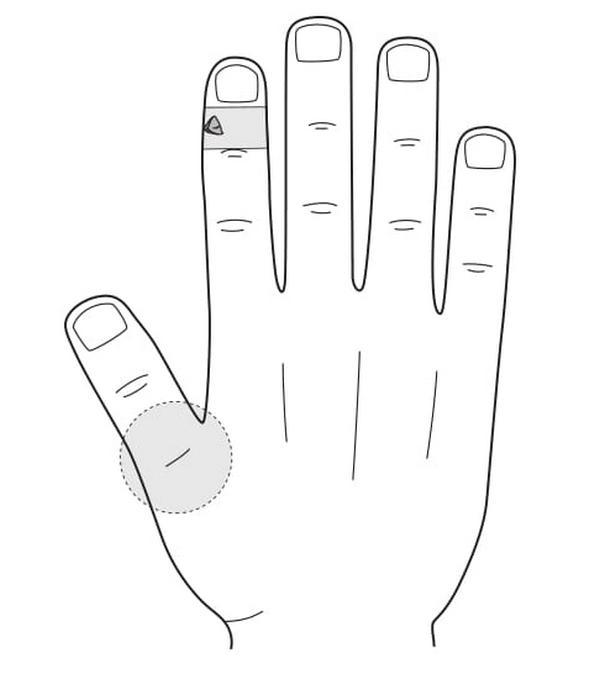 Рис. 107. Семянотерапия при боли в области большого пальца