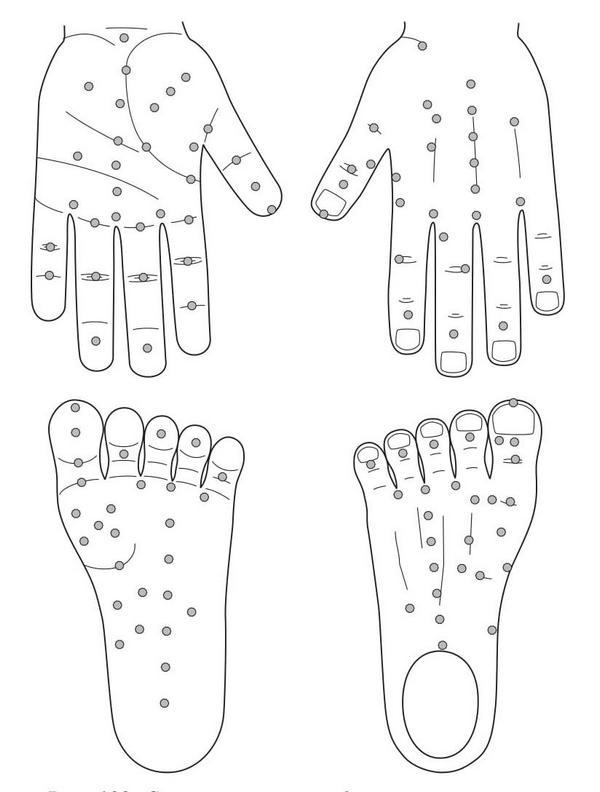 Рис. 103. Семянотерапия по болезненным точкам кистей и стоп при эпилепсии