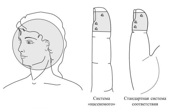Рис. 113. Семянотерапия левосторонней мигрени