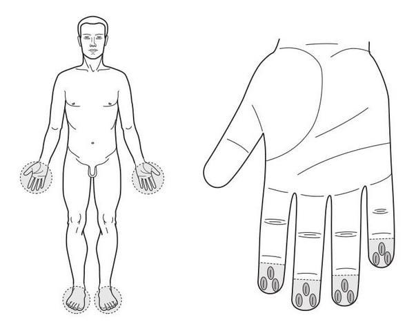 Рис. 91. Семянотерапия при онемении пальцев рук и ног