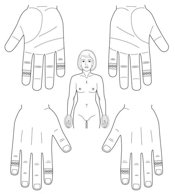 Рис. 124. Семянотерапия при онемении кистей рук