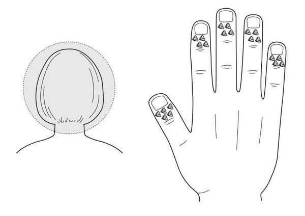 Рис. 90. Семянотерапия болезненных уплотнений кожи головы
