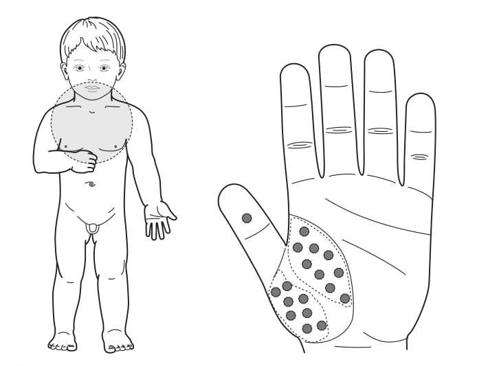 Рис. 105. Семянотерапия при частых простудах